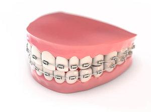 fake teeth braces model