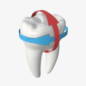tooth molar arrow model