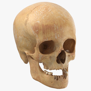 3D human female skull damaged model
