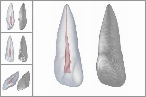 human upper left central 3D model
