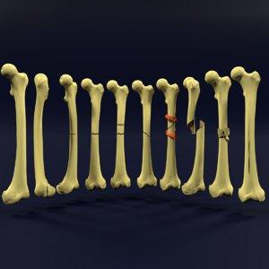 3D model types fractures