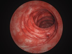 intestine tract 3D model