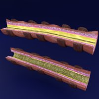 3D bronchioles asthma model