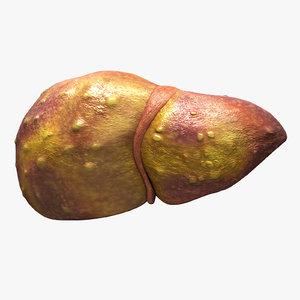 3D liver cirrhosis
