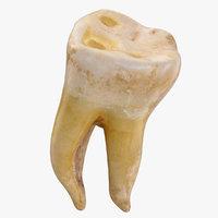 3D molar upper jaw right