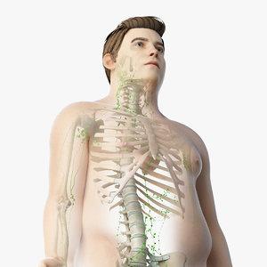 3D skin obese male skeleton model