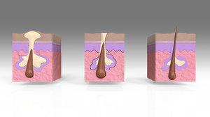 3D human skin hair