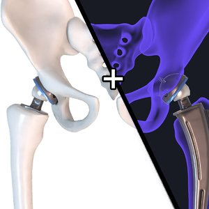 hip replacement implant installed model