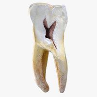 3D model molar lower left jaw