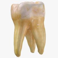 molar upper jaw right 3D model