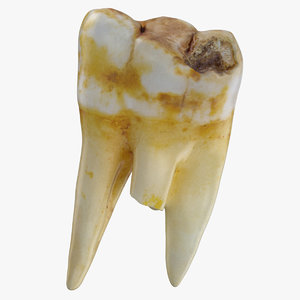 molar upper jaw left model