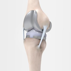 3D knee replacement