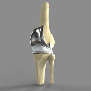 3D knee replacement model