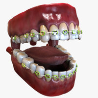 Human Mouth with Dental Braces