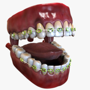 3D human mouth dental braces model