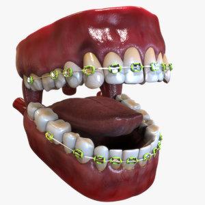 3D human mouth dental braces model