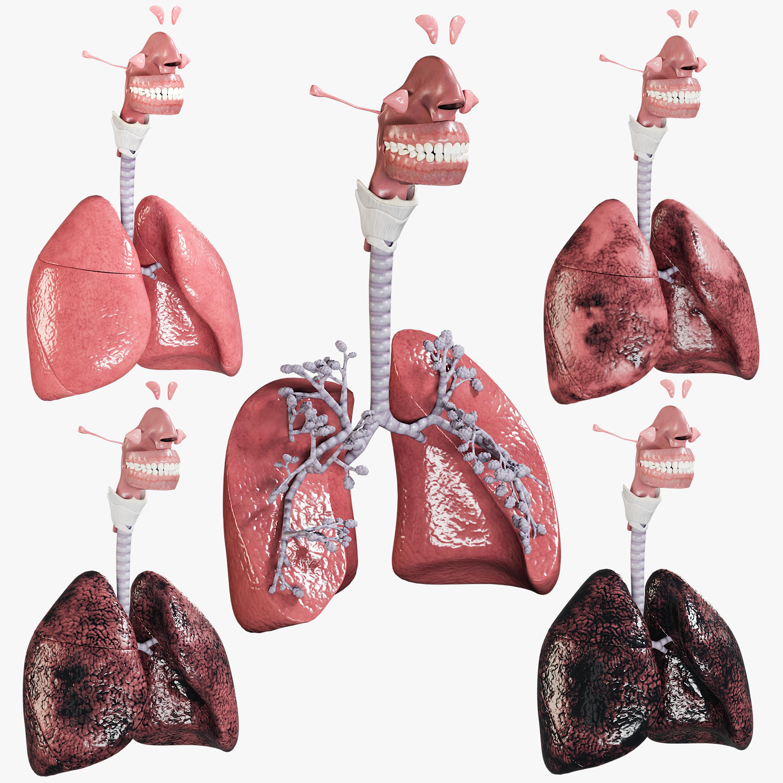 3D respiratory smoker s lungs model