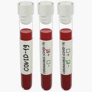 test tubes coronavirus v2 3D model