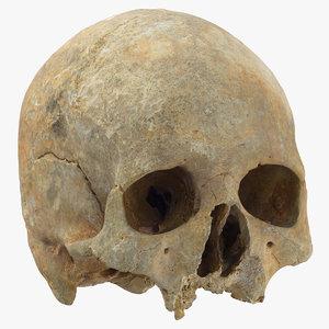 human skull cranium leprosy 3D model