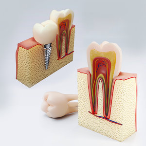 3D dental implants teeth model