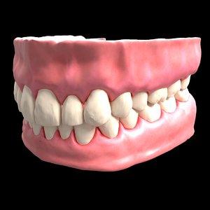 denture medicine 3D model
