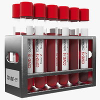 Full Test Tube Rack with Positive Covid 19 Tests