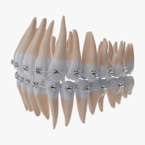 braces orthodontics 3D model