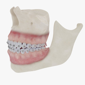 realistic bones gums braces 3D model