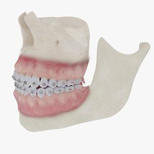realistic bones gums braces 3D model