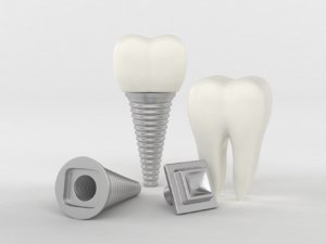 tooth implants model