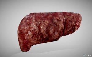 3D hepatocellular carcinoma hcc liver model