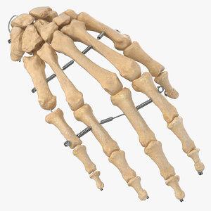 human hand bones wire 3D model