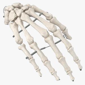3D human hand bones wire