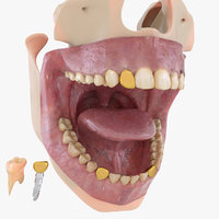 Mouth, Teeth, Grill and Implant