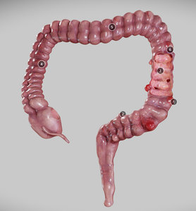 3D disease diverticulosis diverticulitis intestinal