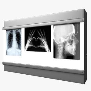 3D negatoskop light box x