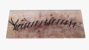 scar stitches 3D model