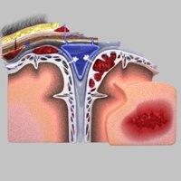 Brain hemorrhage types