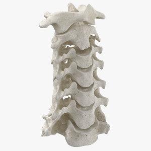 3D real human neck cervical