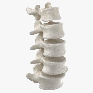 3D model real human lumbar vertebrae