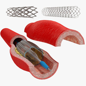 3D stents artery