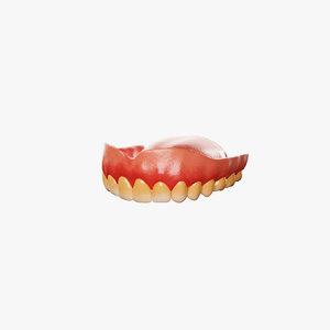 3D dental prosthesis model