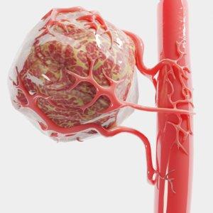 vessel tumor 3D model