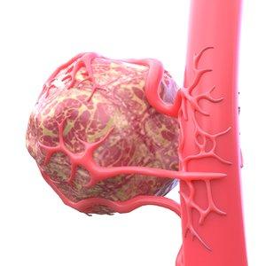 3D vessel tumor