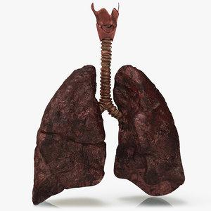 smoker s lungs 3D model